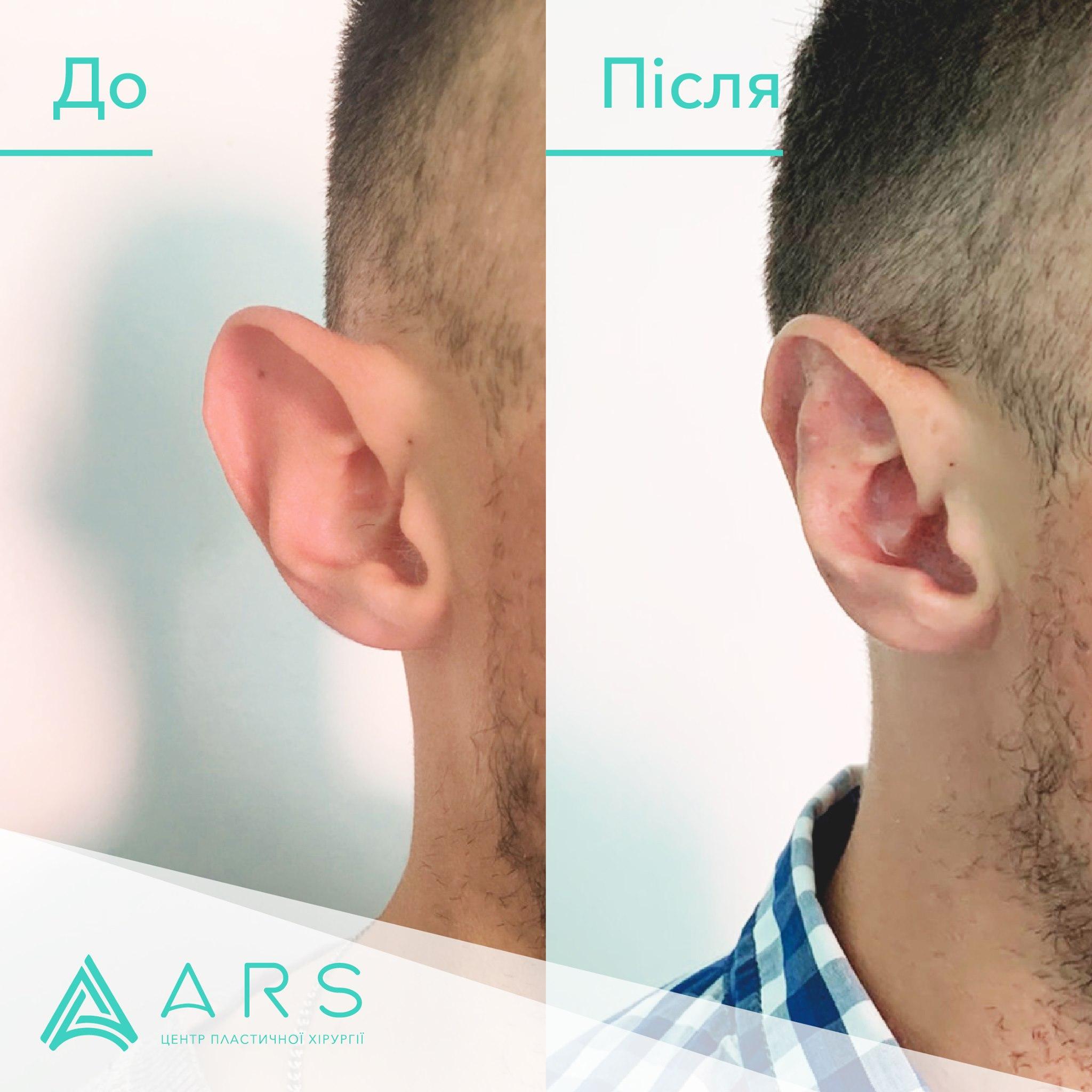 Пластика ушей (отопластика) до/после