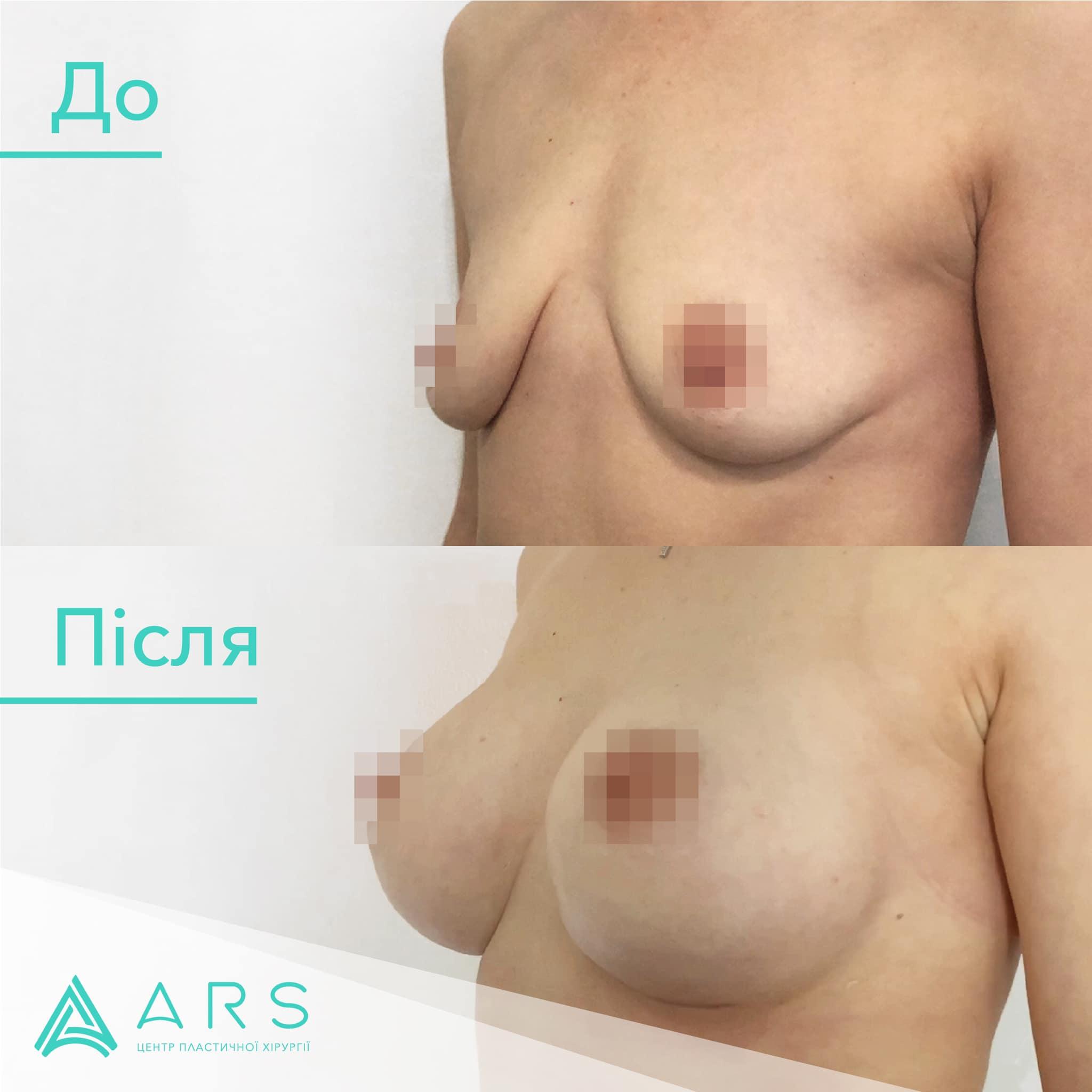 Увеличение груди до/после #1