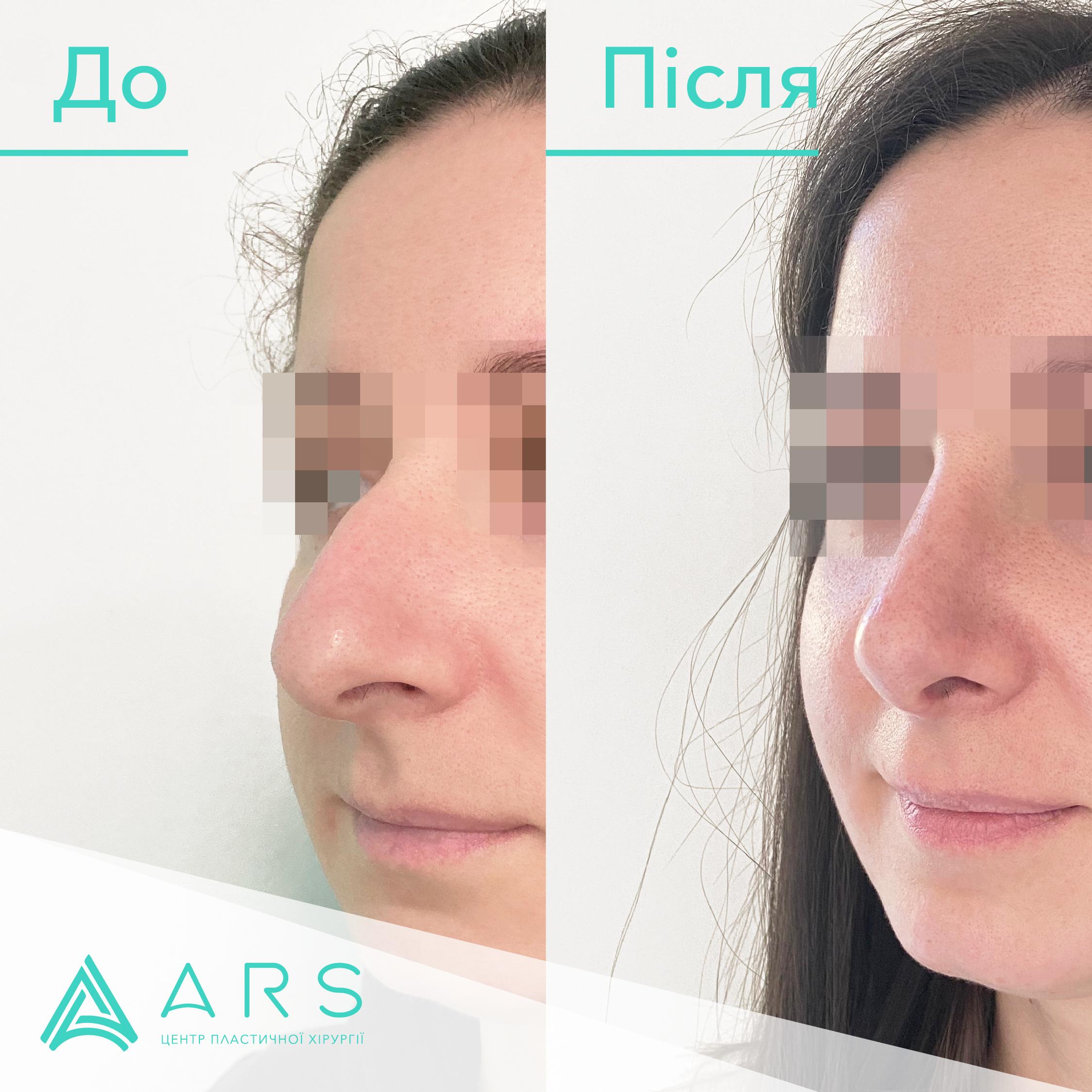 Пластика перегородки носа (септопластика) до/после #8