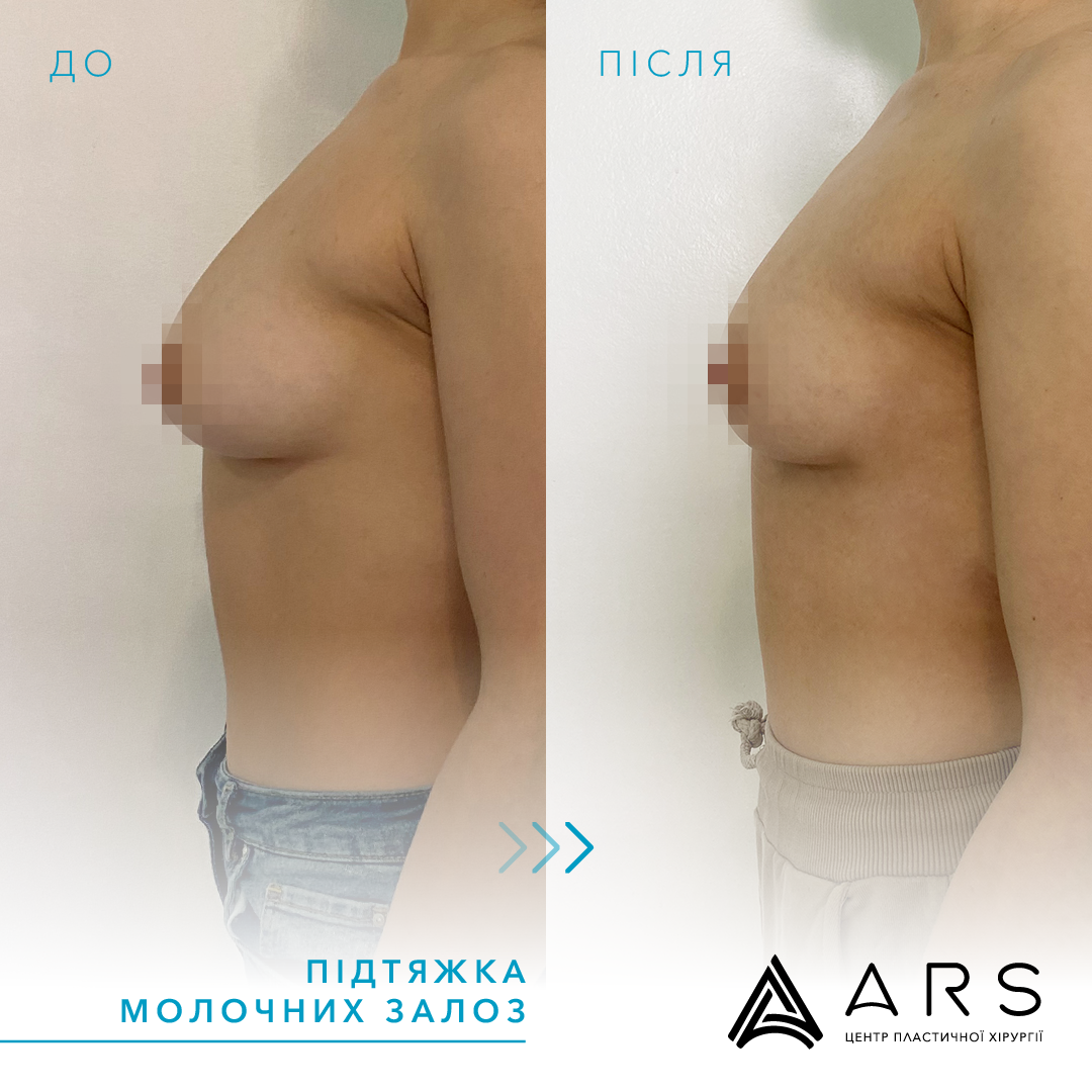 Подтяжка груди (мастопексия) до/после