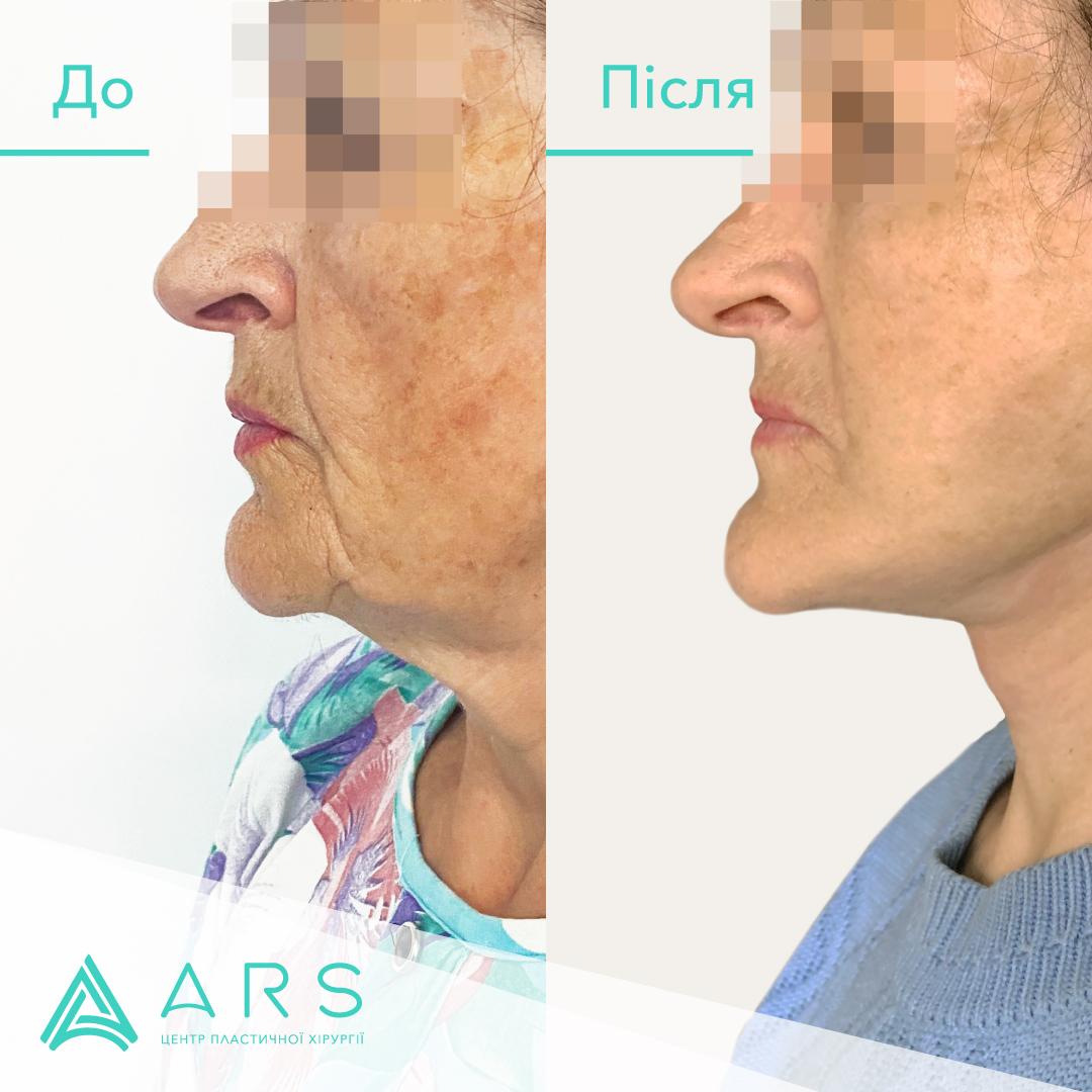 Підтяжка обличчя (фейсліфтинг) до/після