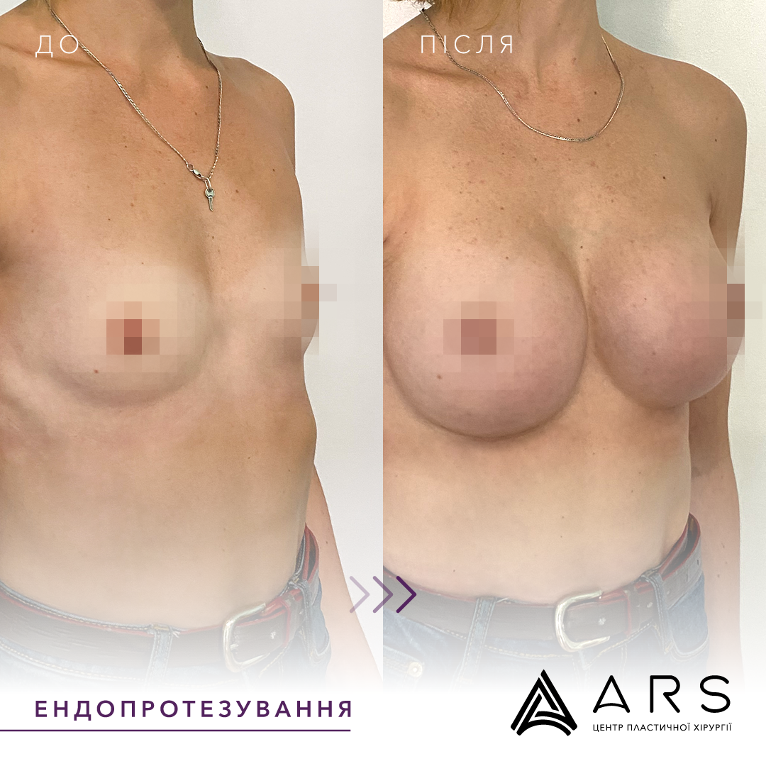 Увеличение груди до/после