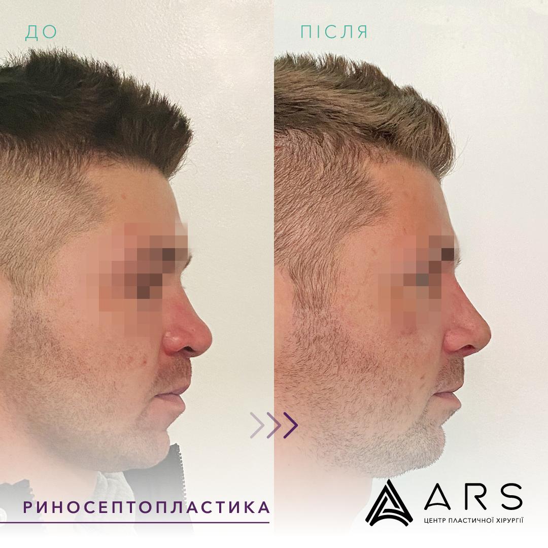 Пластика перегородки носа (септопластика) до/после