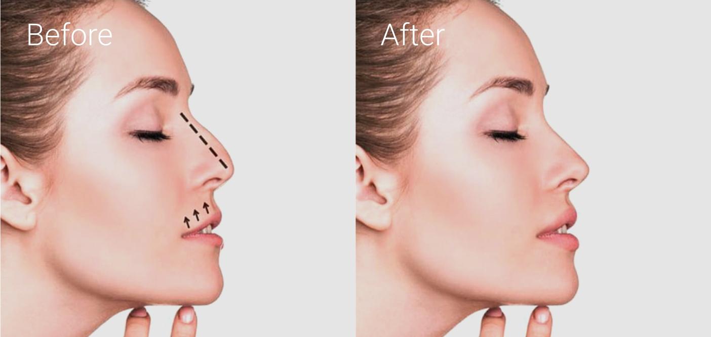 Пластика перегородки носа (септопластика)