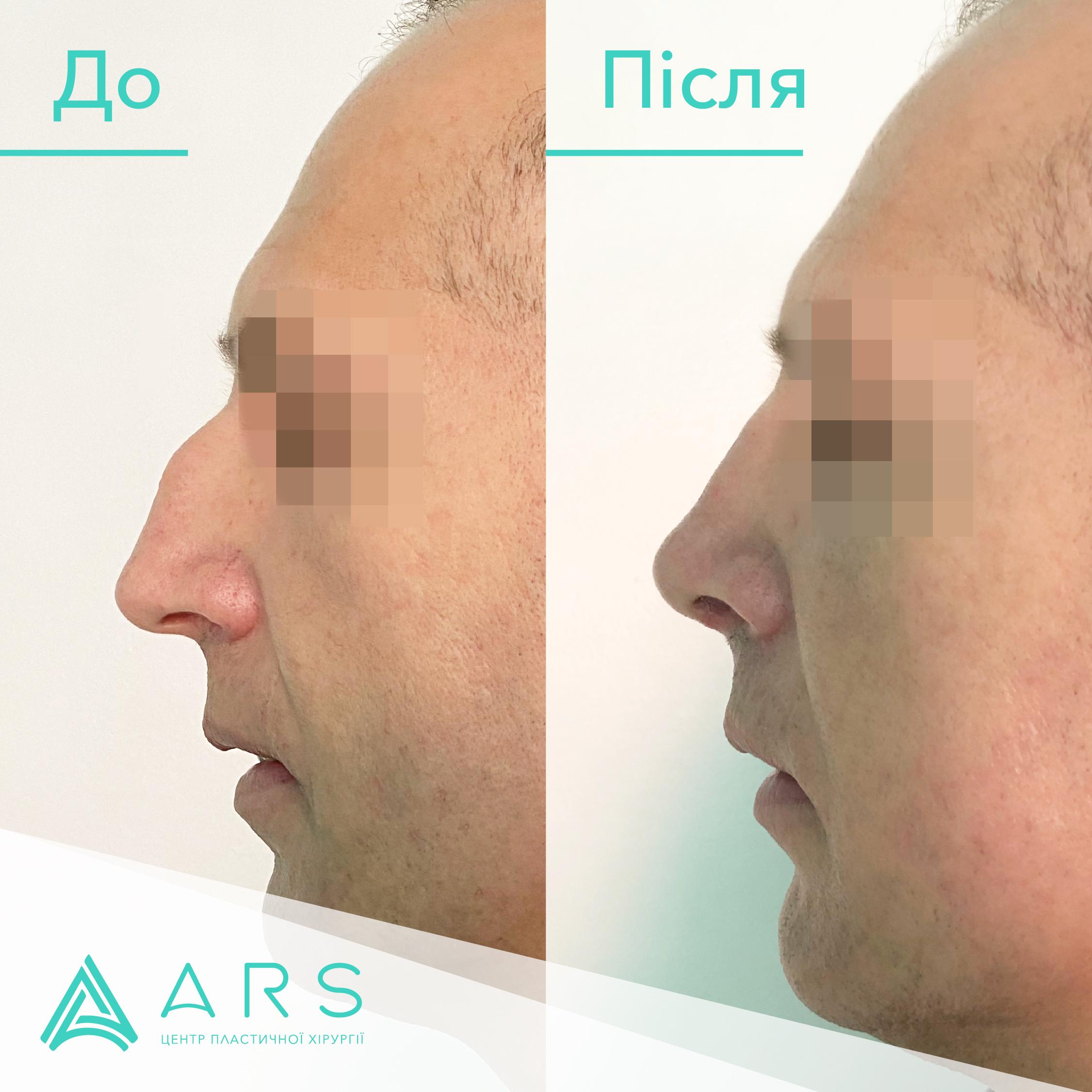 Пластика перегородки носа (септопластика) до/после #7